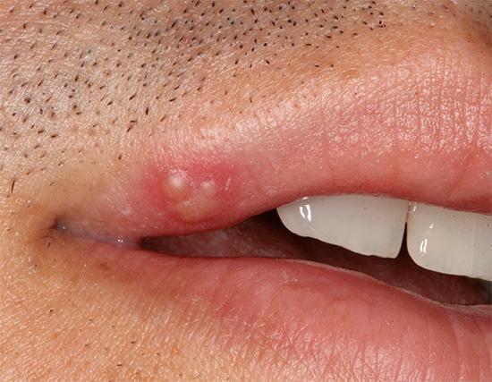 Рассмотрим особенности домашнего лечения герпеса на губах с акцентом на использование современных медицинских препаратов...