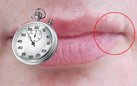 Своевременно начатое лечения нередко позволяет полностью предотвратить появление пузырьков на губах.