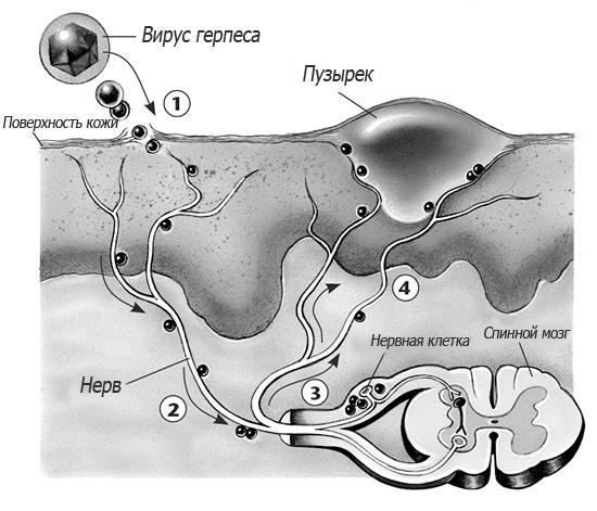 На картинке схематично показано заражение клеток спинного мозга вирусом герпеса и последующее проявление болезни на поверхности кожи.